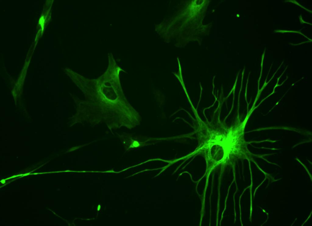 1024px-Human_astrocyte